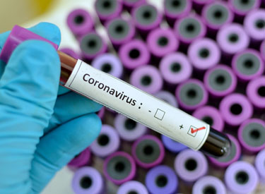 Coronavirus labeled tube