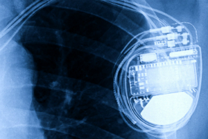 Active Implantable Medical Devices